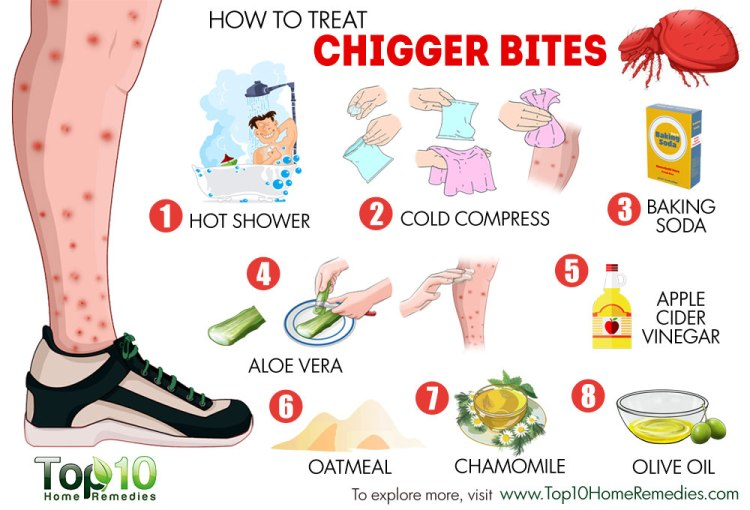 chigger-bites